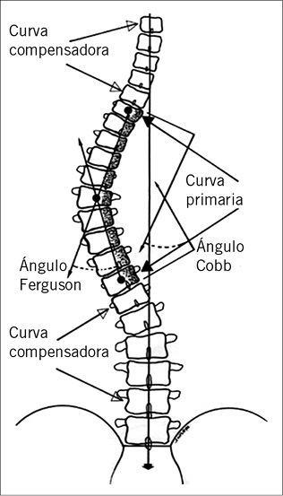 escoliosis quiropractico modelo