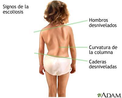 escoliosis quiropractico signos