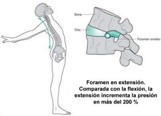 espondilo extension quiropractico