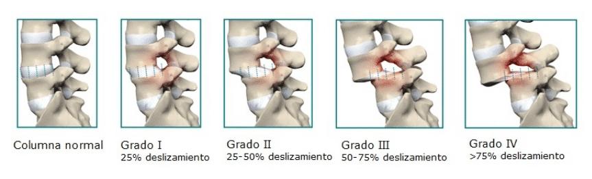 grado espondiloliestesis quiropractico