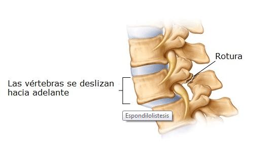 espondilolistesis quiropractico